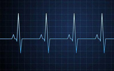 L'infirmier(e) et l'électrocardiogramme (ECG)